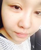 韩国美佳双眼皮修复1个月 眼睛做失败的妹子进来看看