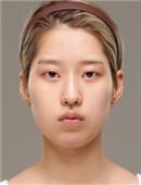 韩国爱我整形颧骨整形+隆鼻手术恢复案例