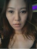 韩国美佳做眼睛颧骨和脂肪填充效果很赞