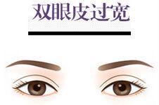 做完双眼皮恢复后太宽了 怎么样修复?