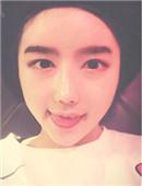 韩国ID整形医院双眼皮+隆鼻手术案例恢复全过程