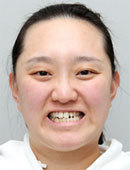 韓國FACE-LINE整形外科-她在菲斯萊茵做整形的全過程和恢復效果圖