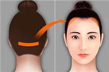 额头太高怎么整,韩国多娜整形外科毛发移植