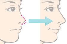 自体软骨隆鼻所用的手术材料有哪些?