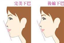 韩国短下巴整形的方法有哪些?