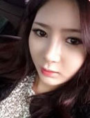 韩国MVP整容整形医院-在韩国秀美颜做鼻部整形的前后过程