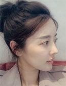 韩国MVP整容整形医院-在韩国mvp整形医院做完隆鼻失败修复后的样子