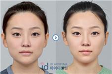 做纯韩V-LINE小脸术需要多少钱?