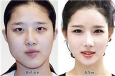 韩国双颚手术需要多少钱