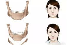 韩国下颌角整形手术价格贵吗