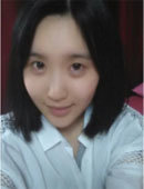 在韩国珠儿丽做完面部轮廓和眼部整形后的她