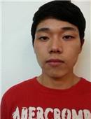 韩国原辰面部轮廓整形恢复全过程