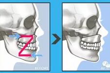 哪种整形手术对地包天改善最明显?
