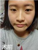 韩国原辰双眼皮整形真实记录