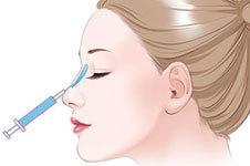 玻尿酸注射隆鼻怎么样?在哪做比较安全