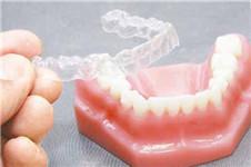隐形牙齿矫正和传统矫正哪个更好?