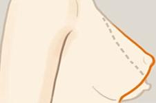 乳房下垂矫正手术有效果吗