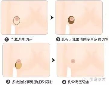 胸部缩小乳晕周围切开法手术示意图