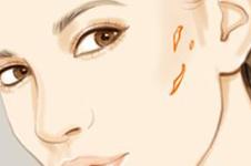 韩国疤痕修复术适用于哪些疤痕