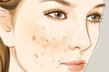 重现凝脂肌肤 5种手术治疗痘疤