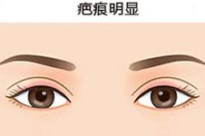 韩国双眼皮疤痕修复效果怎么样