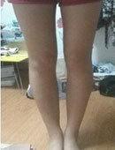在灰姑娘做完腿部吸脂手术 小粗腿不见了
