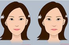 30岁以后脸部有松垂?这四种提升办法超赞哦