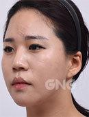 她在GNG只做了鼻子却改变了人生!
