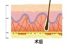 韩国胶原蛋白线面部提升术是什么?