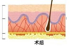 韩国童颜秘籍 胶原蛋白线提升术的效果好不好?