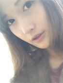 韩国ID整形医院-在id做完芭比隆鼻后的样子