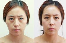 韩国干细胞皮肤再生术是什么?