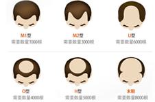 去韩国毛发移植需要多少钱?