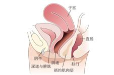 韩国后方膣圆盖术到底是什么?
