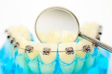 牙齿矫正经常出现的三大基础问题解答
