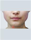 瘦脸针对比案例