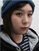 韩国TL整形医院-高级V轮廓术+双眼皮手术整容真实经历分享
