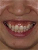 牙齿矫正对比案例_术前