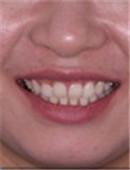 牙齿矫正对比案例_术后