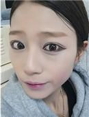 韩国ID整形医院-韩国芭比鼻整形+纳米脂肪填充真实恢复日记