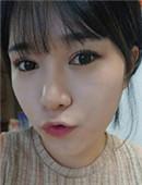 韩国秀美颜整容外科-韩国眼鼻整形+自体脂肪丰面颊真实整形日记