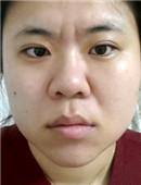 赴韩全脸综合整形术后恢复全记录