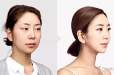 韩国TL自体软骨隆鼻优势有哪些?