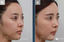 韩国公布整形医院隆鼻失败修复细节!