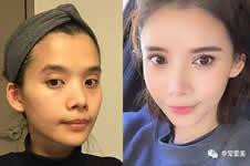 韩国医院做面部轮廓整形优势有哪些?
