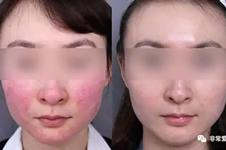 韩国面部红血丝治疗优势有哪些?