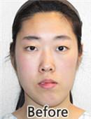 韩国面部骨骼不对称整形手术矫正真实经历
