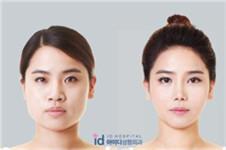 韩国V-LINE四方脸整形术效果怎么样