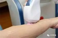 韩国整形医院脱毛具体优势有哪些?