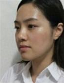 去韩国下颌角整形半年后的恢复日记_术前